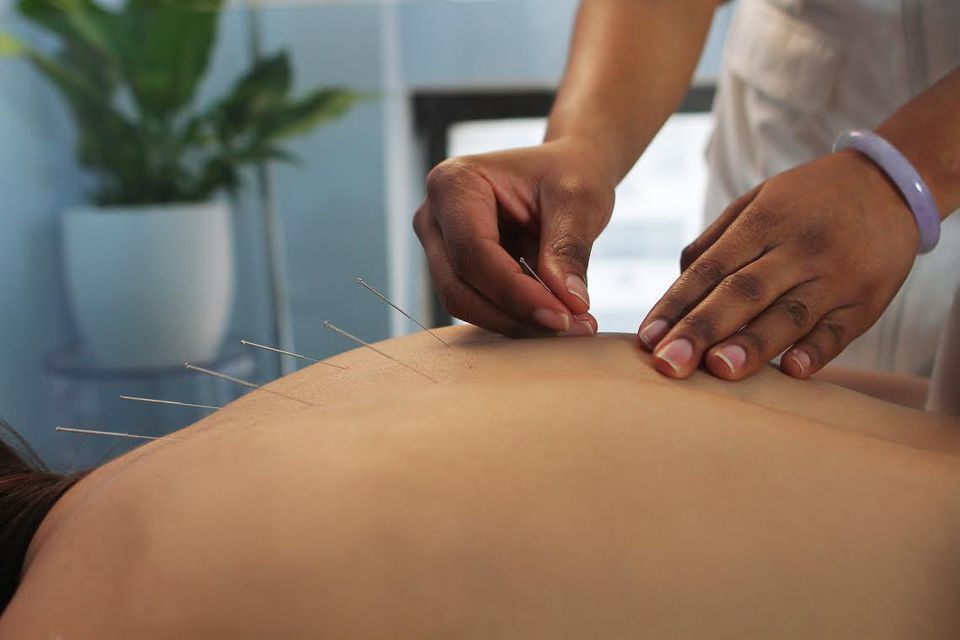 Acupuncture is a burgeoning trend on Wall Street.