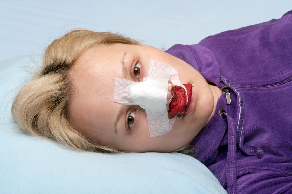 دلیل خونریزی بعد از عمل زیبایی بینی