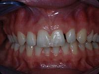 Přední zuby před ošetřením.