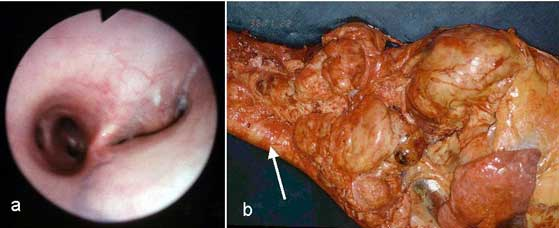 Narrowing of left main bronchi by abscessation of the lymph nodes near tracheal bifurcation (a), necropsy shows multiple lung abscesses (b, arrow: trachea).