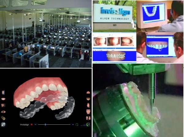 Niềng răng trong suốt Clear Align tiết kiệm và thẩm mỹ 1