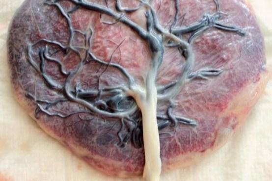 https://i0.wp.com/comadronaenlaola.com/wp-content/uploads/2018/11/placenta.jpg?resize=554%2C369