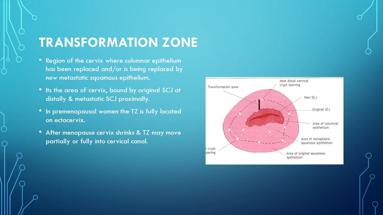 Transformation+Zone