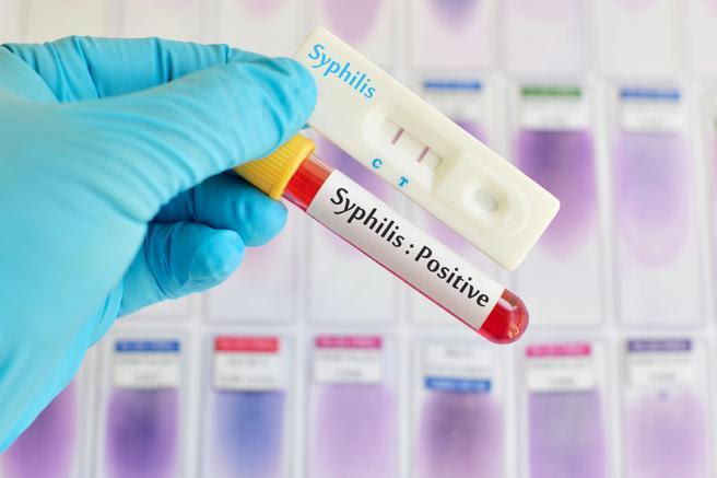 Si se contrae sífilis se debe contactar con todas las parejas sexuales del infectado