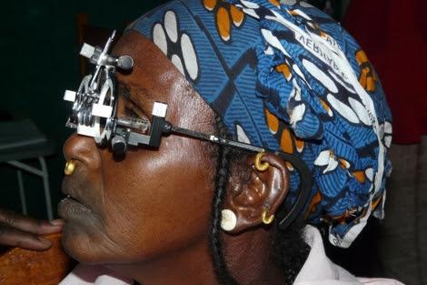 Atendiendo la salud visual de la población de Mali.   Ojos del Mundo