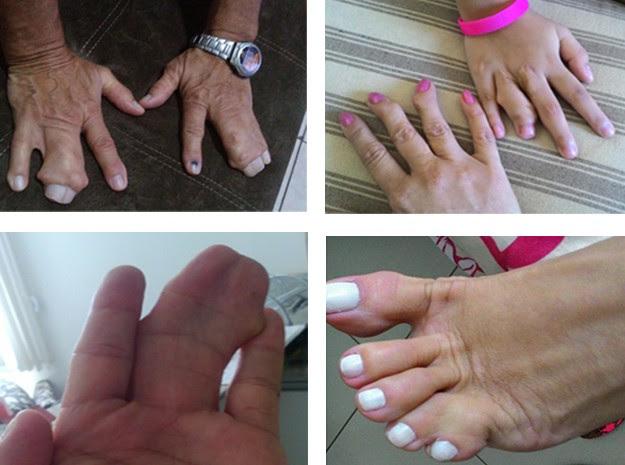 Exemplos de polidactilia em família do Distrito Federal (Foto: Cynthia Campos/Arquivo Pessoal)