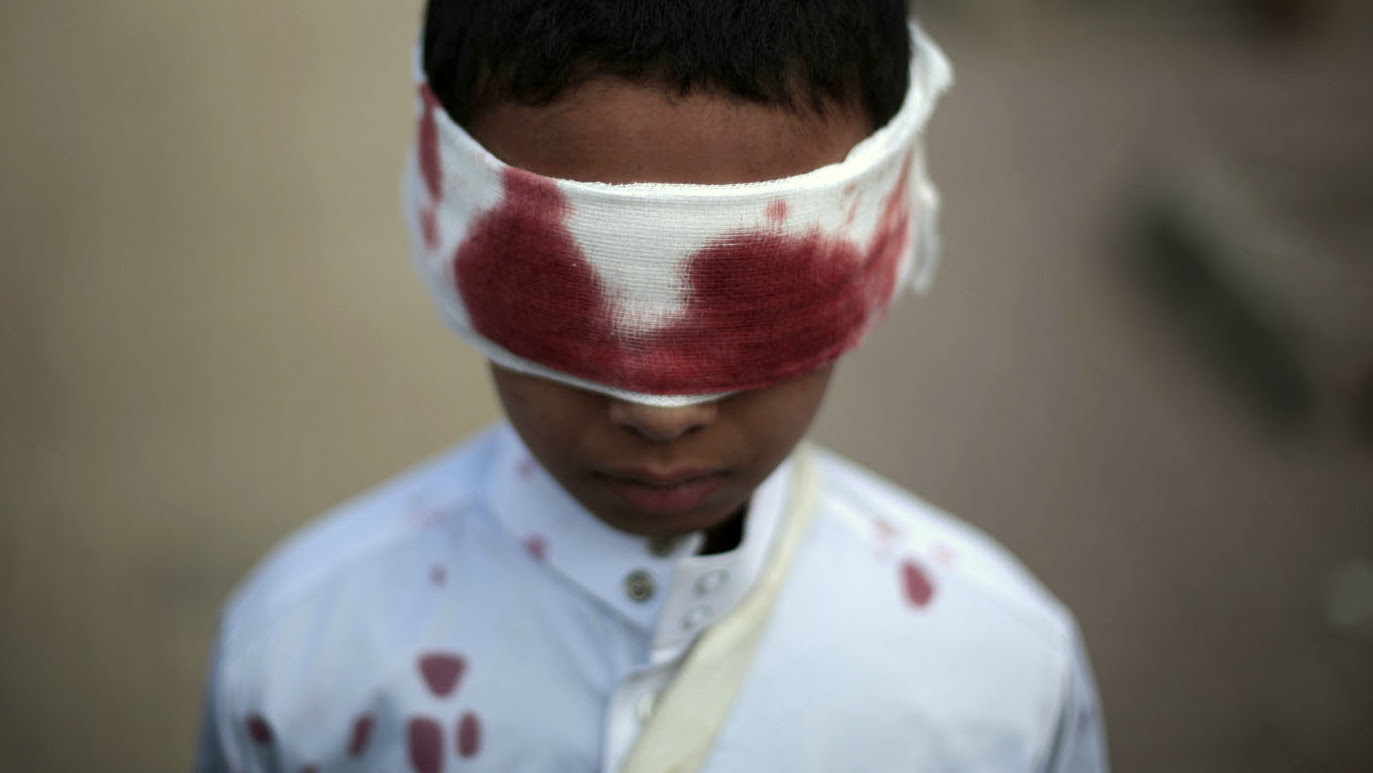 A boy with fake blood on his face and clothes to represent a victim participates in a protest against Saudi-led airstrikes in Sanaa, Yemen, Sunday, Nov. 27, 2016. (AP/Hani Mohammed)