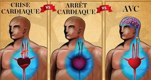 crise-cardiaque-arret-cardiaque-avc