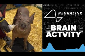 Elon Musk Memamerkan Neuralink, Chip yang dipasang diotak manusia!