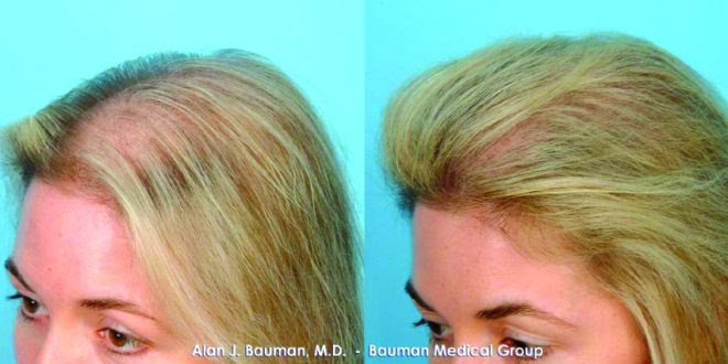 Don't STRESS your TRESSES… – South Florida Health and ...