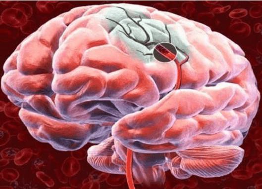 5 τρόποι για να αυξήσετε τη ροή του αίματος στον εγκέφαλο