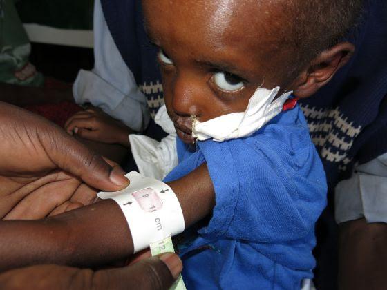 Al entrar al hospital, el brazo de Nuriya no tenía mucho más perímetro que el del dedo pulgar de un adulto.