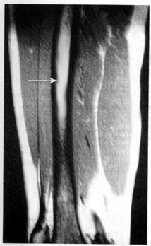Tibial Shaft Stress Fractures Knee Sports Orthobullets
