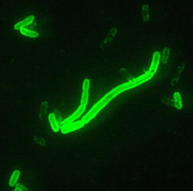 Yersinia pestis fluorescent.jpeg