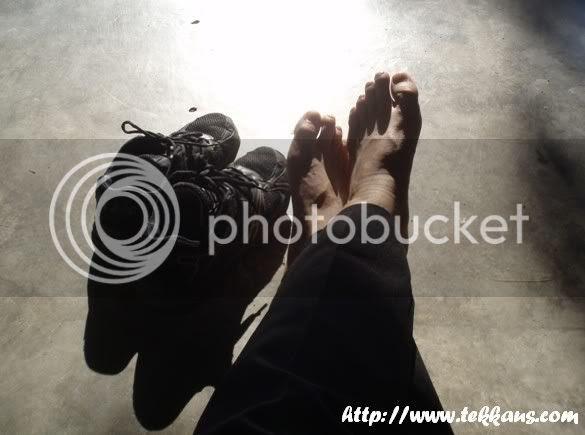 My Injured Feet