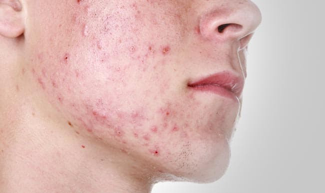 Image result for acne breakouts