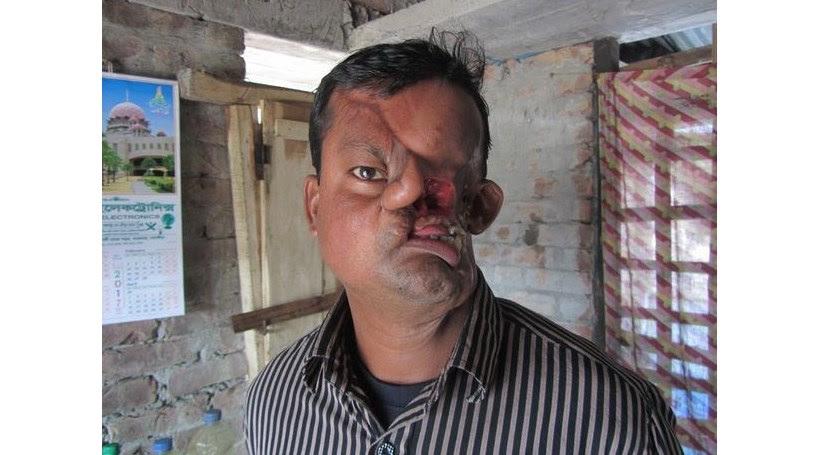 Homem é atacado por tigre e fica com o rosto desfigurado