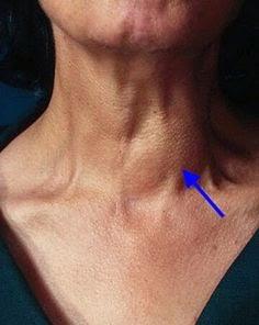 Ciri Ciri Tumor Jinak Di Leher - Ini Cirinya