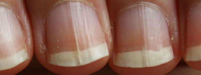 """Résultat de recherche d'images pour """"champignons des ongles"""""""