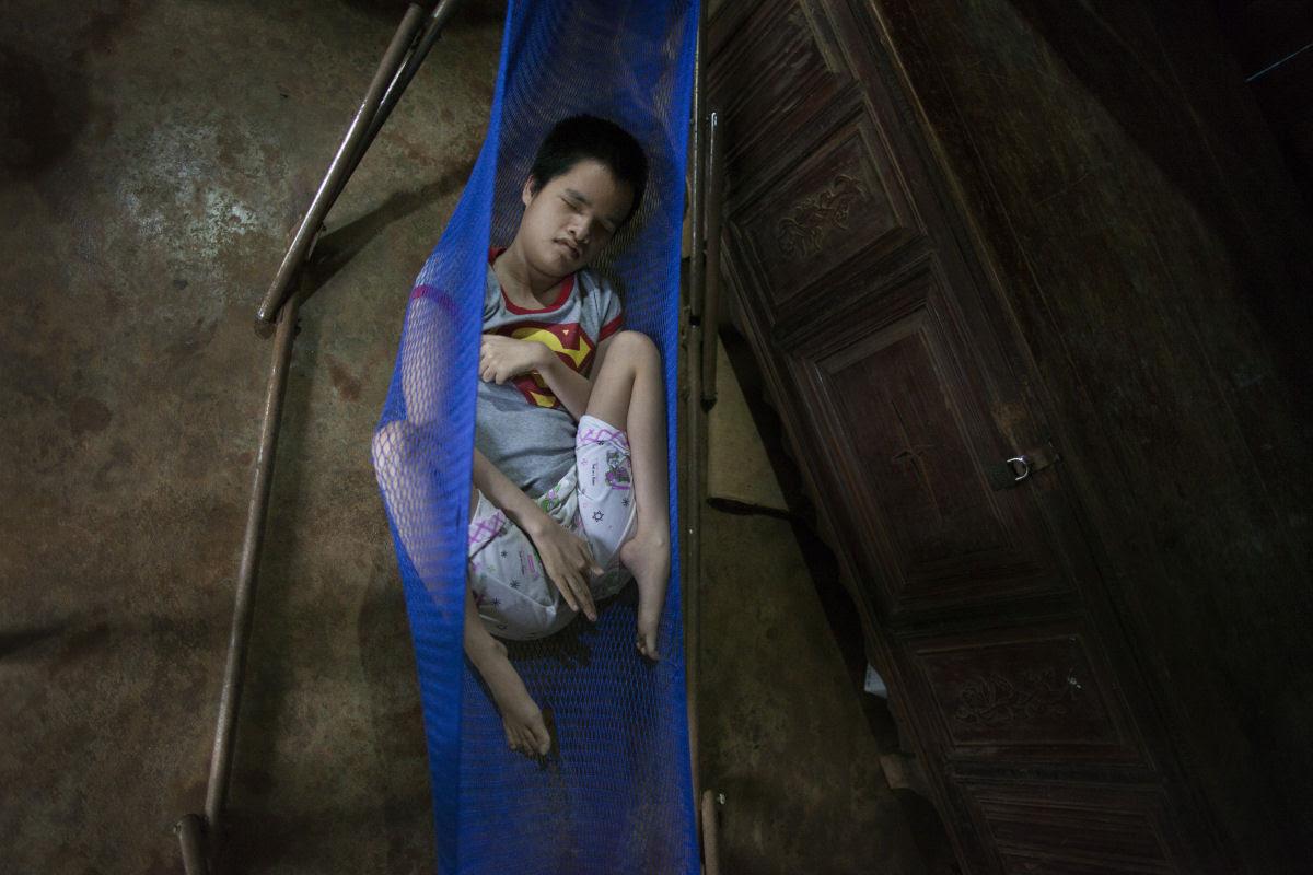 Estas 12 fotos mostram o legado devastador dos Estados Unidos no Vietnã 06