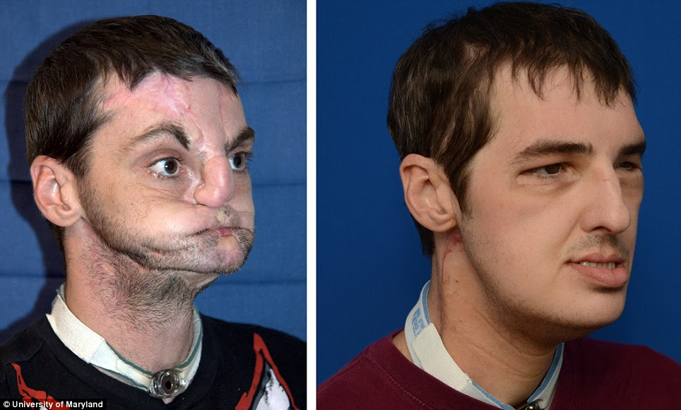 Incredible: Richard Lee Norris, 37, who had the most extensive face transplant to date, is seen before and in a photo made 114 days after the transplant was performed in March