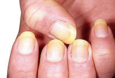El color y forma de las uñas ayudan a diagnosticar ciertas enfermedades