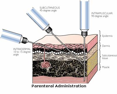 Parenteral Adminitration (1)