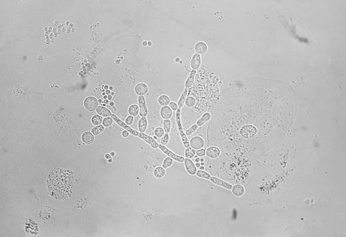 tramsmission photomicrograph depicted a number of Candida albicans chlamydospores