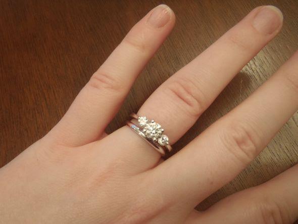 Wedding ring to tight