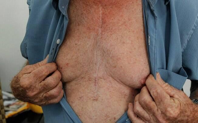 A cicatriz é a marca da cirurgia que o profissional fez para colocar cinco pontes de safena, em 2011: 'agora estou bem para caramba'