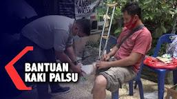 BANTUAN KAKI PALSU | Kompas TV Aceh