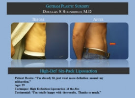 Does Health Insurance Cover Liposuction in Los Angeles, CA?