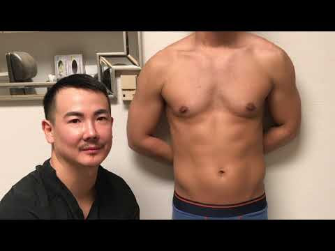 Gynecomastia - Dr. Johnson C. Lee, MD Plastic Surgical procedure