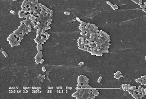 Esch coli
