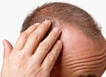 prurito alla testa e perdita capelli - Prurito alla testa Trico Accademy