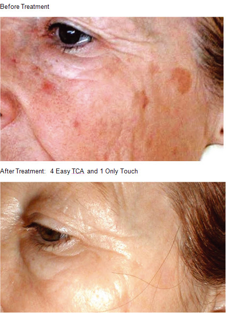 Skin Peel Images » Reba Cosmetic Clinic - Specialist ...