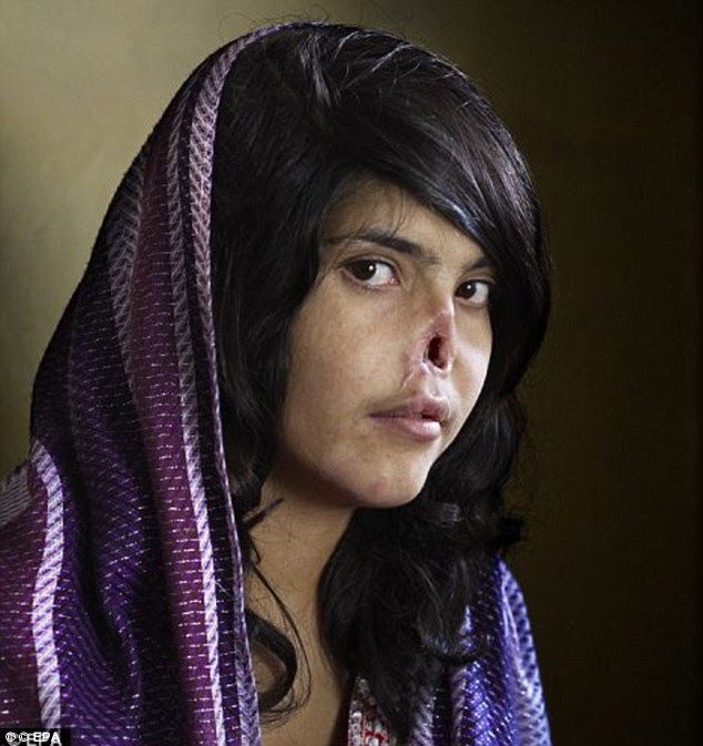Shocking: In 2010, an Afghan teenager called Aisha featured on the front cover of Time magazine