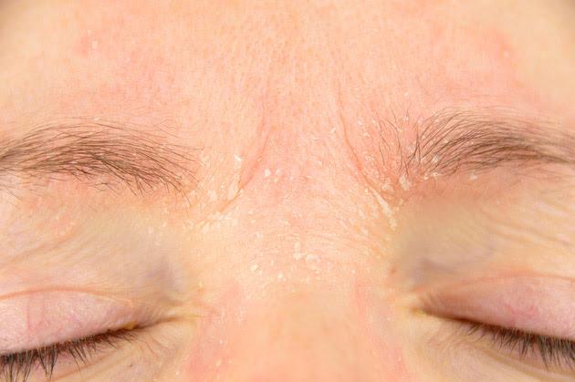 rostro de mujer con piel seca