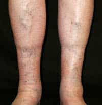 The Stages of Vein Diseases in Kansas City & Lee's Summit
