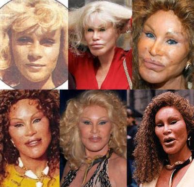 Disastres de cirurgia plástica de celebridades - Jocelyn Wildenstein