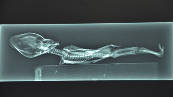 Atacama Humanoid XRay