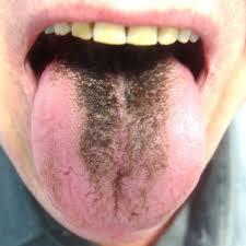 Why Do I Have Black Tongue New Health Advisor