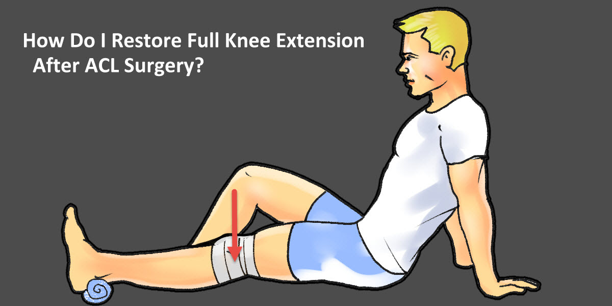 Image result for 3 Frequently Asked Questions About ACL Surgery