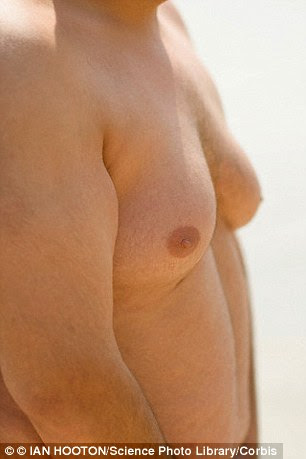 Men sometimes develop breasts as they are overweight. But it may be a sign of a hormonal imbalance (file photo)
