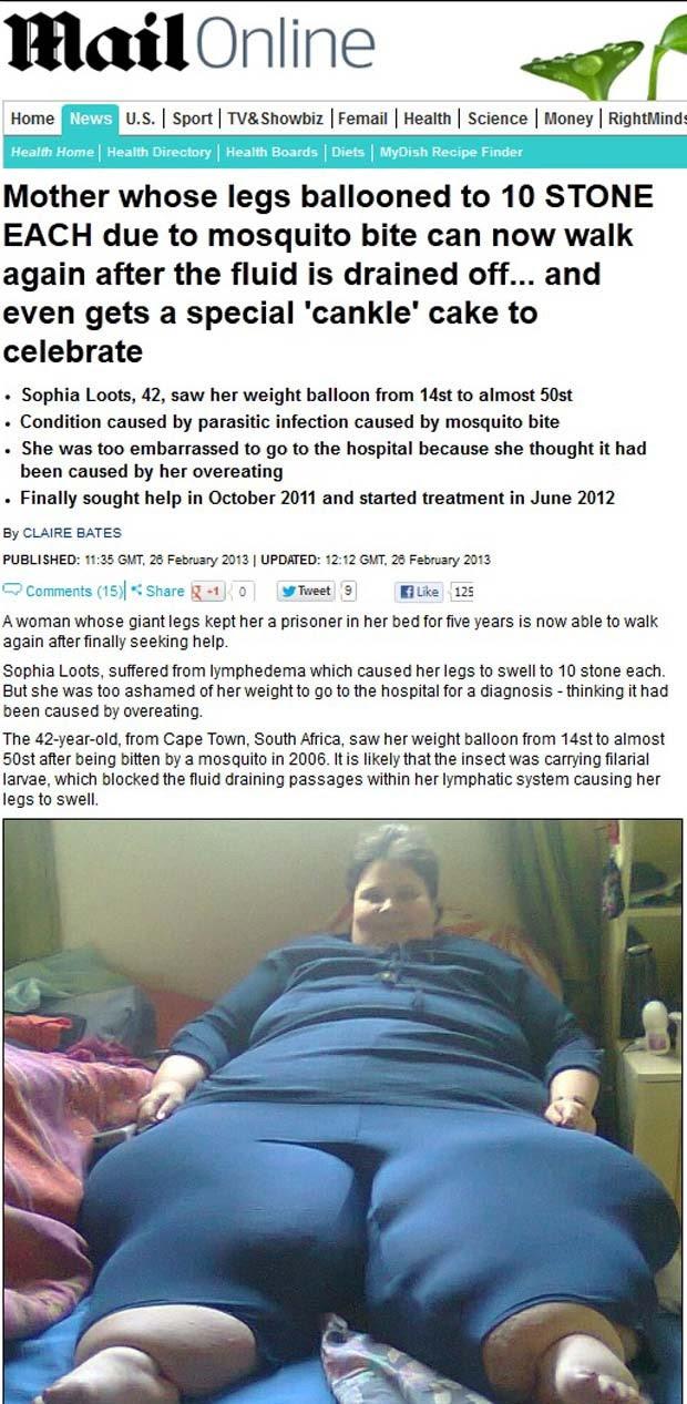 Sophia Loots chegou a ter mais de 60 kg em cada perna (Foto: Reprodução/Daily Mail)