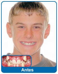 antes-e-depois-aparelho-dentario-9