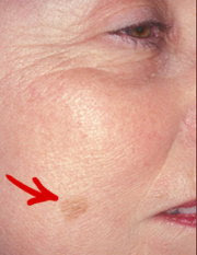 How To Get Rid of Age Spots On The Face
