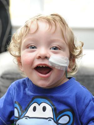 Alfie, comemorando seu primeiro aniversário, após ter coração e pulmões parados por quase 1 hora. (Foto: Caters)