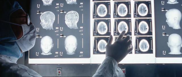 El cerebro humano es capaz de producir cerca de 1.400 nuevas neuronas cada día