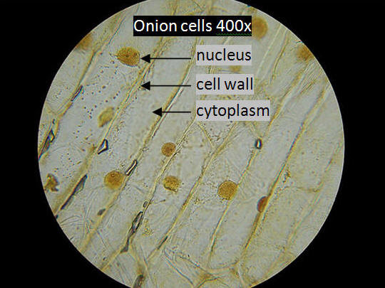 1096113060 cell onion